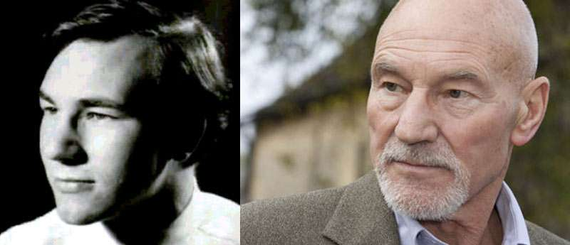 Patrick Stewart with hair before and after