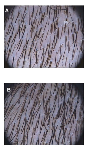 Topical carnitine hair growth results