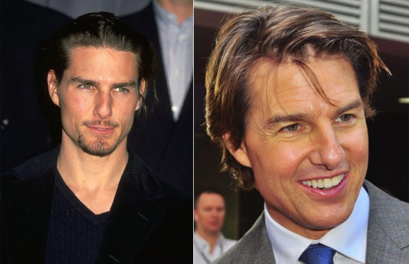 Tom Cruise hair loss
