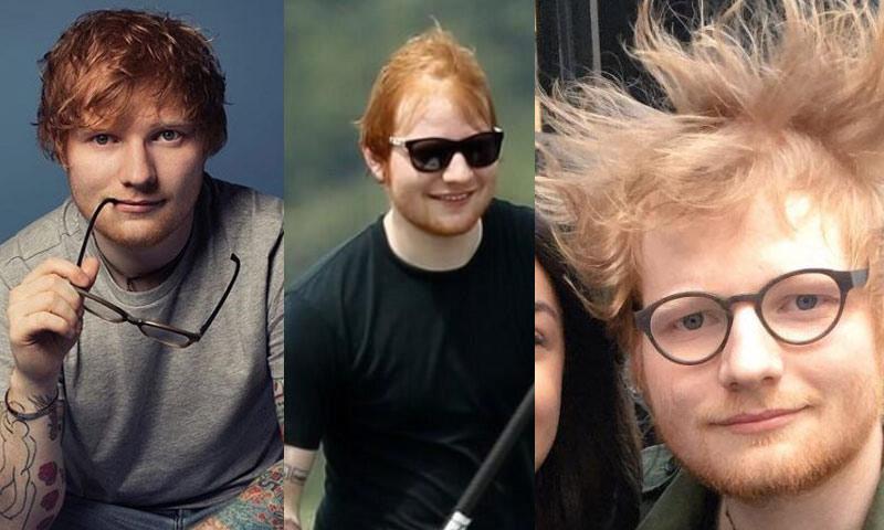 Ed Sheeran hair loss