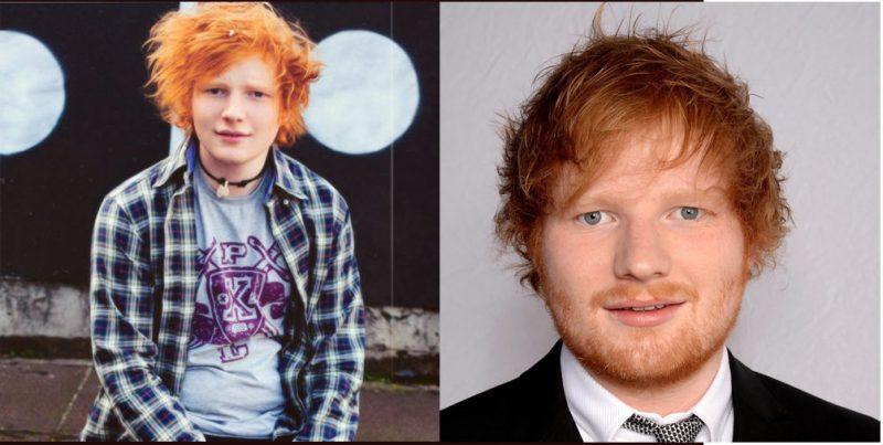 Ed Sheeran young and old hair loss