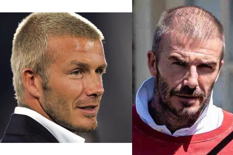 David Beckham shaven cropped hair young and old